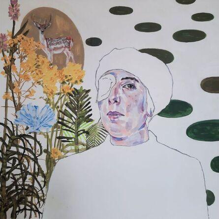 BARBARA BONFILIO, 'Self Portrait with bandaged eye', ca. 2021