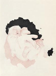 Eight-Limbed Baby