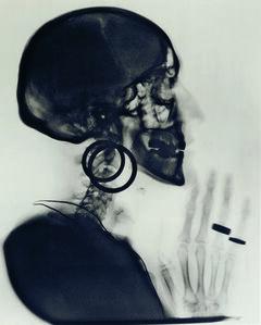 X-Ray of Meret Oppenheim's Skull