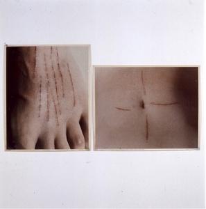 Cicatrice de l'action (Le corps pressenti, Psyché)