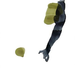 Schiele's Hand