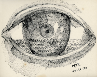 Eye with cataracts