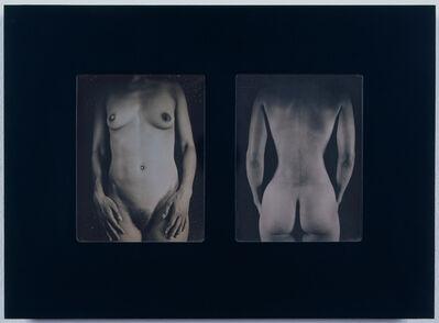 Chuck Close, 'Untitled Torso (AP Torso)', 1999