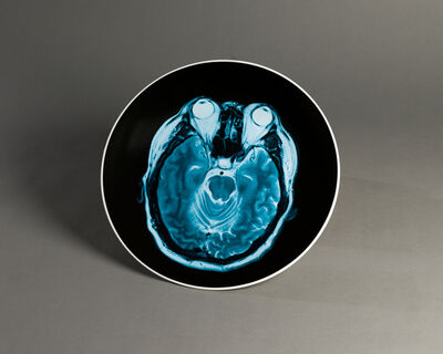 Ai Weiwei, 'Brain Inflation on Plate', 2012
