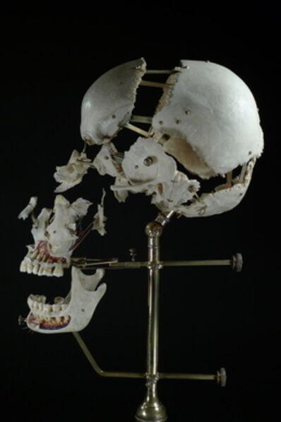 Ryan Matthew Cohn, 'Exploded/Beauchene Human Skull', 2012-2014