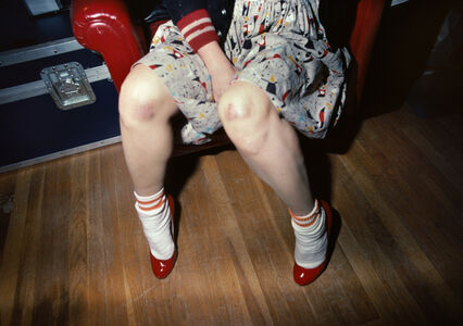 Muriel with bruised knees