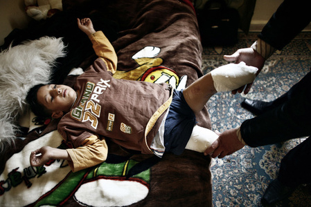 Mohammed, 11, had to go through painful physiotherapy to recover from his fresh wounds. He even wakes up wanting to scratch his lost feet