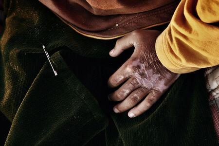 Mohammed's burned hand. Rashidiyeh, Lebanon