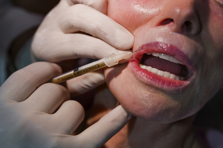 """Dermatologist Dr. Arnold Klein, 81, dubbed """"the King of Lips,"""" injects """"the Pink Lady"""" Jackie Goldberg, 72, with collagen, Beverly Hills"""