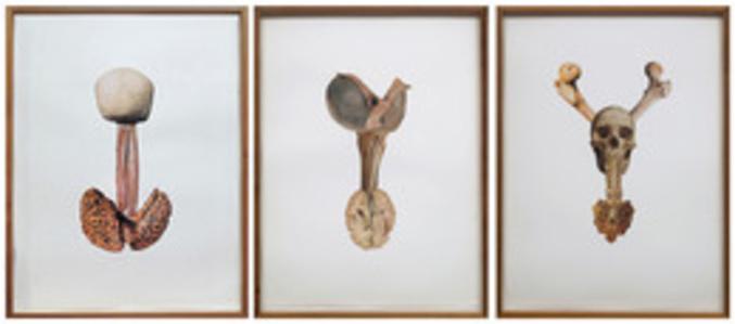 Artéria epigástrica Picasso, Proeminência tireóidea Degas, Atlas