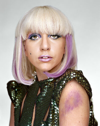 Martin Schoeller, 'Lady Gaga with Bruise', 2009