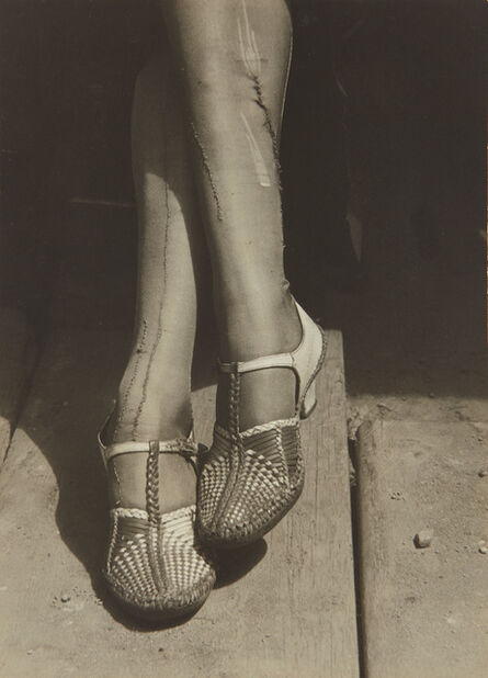 Dorothea Lange, 'A Sign of the Times–Mended Stockings, Stenographer, San Francisco', 1934