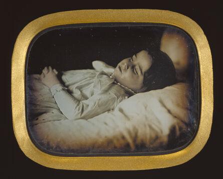 Carl Durheim, 'Postmortem of a Child', ca. 1852
