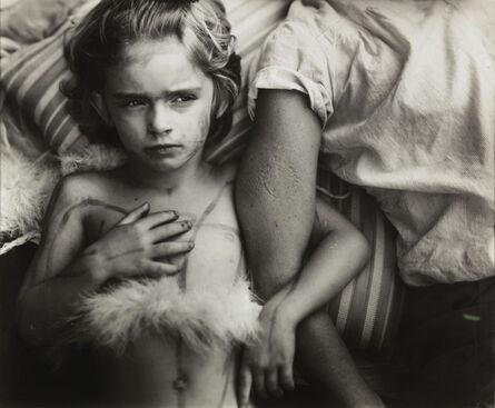 Sally Mann, 'Jessie Bites', 1985