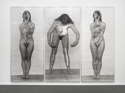 Annegret Soltau, 'Körper-Eingriffe (schwanger) [Body intervention (pregnant)]', 1977/78