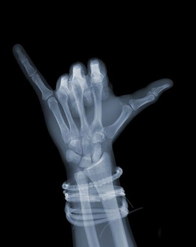 Nick Veasey, 'Hang loose with bands', 2019