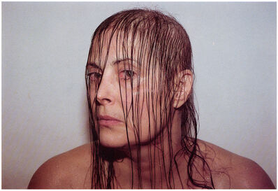 Hannah Wilke, 'Intra-Venus Series #6, February 19, 1992', 1992-1993