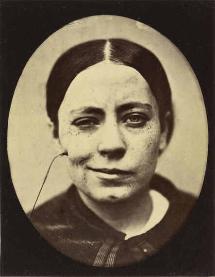 Guillaume Benjamin Armand Duchenne de Boulogne, 'Electro-Physiologie Photographique (Portrait of a Woman), Fig. 35', 1876