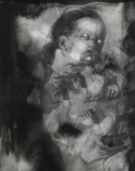 Mika Karhu, 'Mengele's dream', 2018