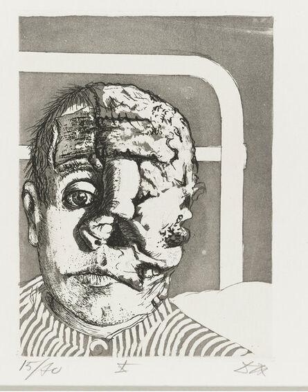 Otto Dix, 'Skin Graft (Transplantation) from the Portfolio War (Der Krieg)', 1924