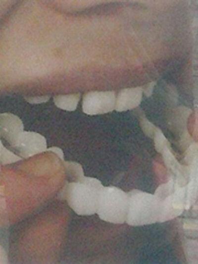 Lon Hin Lai, 'Denture Number 4', 2014
