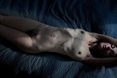 Elinor Carucci, 'Thirty five days after surgery', 2015