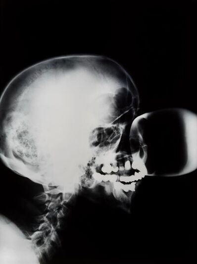 Isa Genzken, 'X-Ray'