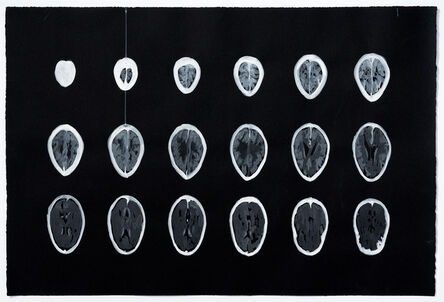 Joanne Lefrak, 'Neuro', 2018