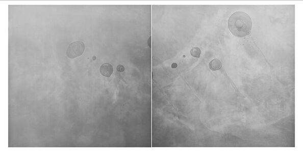 Gen Aihara, 'Composition of Air 0118 (diptych) ', 2008