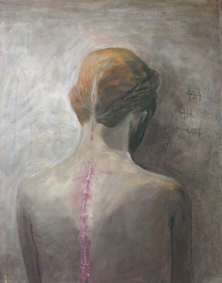 Marcelle Hanselaar, 'Scar', 2017