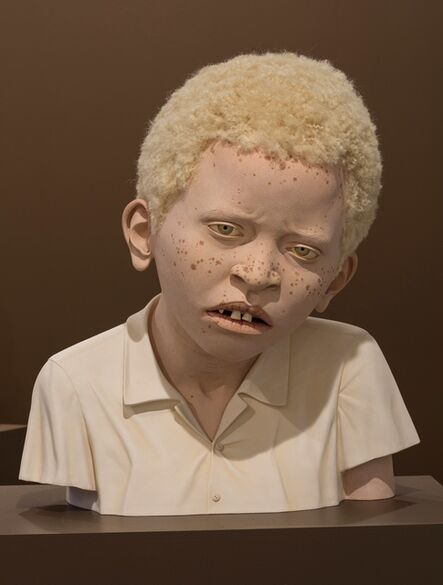 Tip Toland, 'AFRICAN CHILD WITH ALBINISM 1', 2014