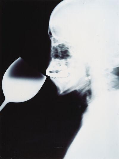 Isa Genzken, 'X-Ray', 1991