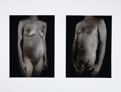 Chuck Close, 'Untitled (from the series The Art of Healing, Doctors of the World Portfolio)', 2001