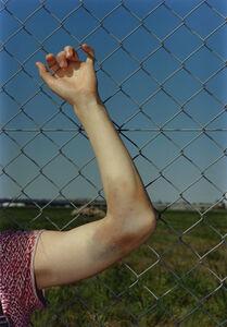 Samuel Laurence Cunnane, 'Annina bruise ', 2019