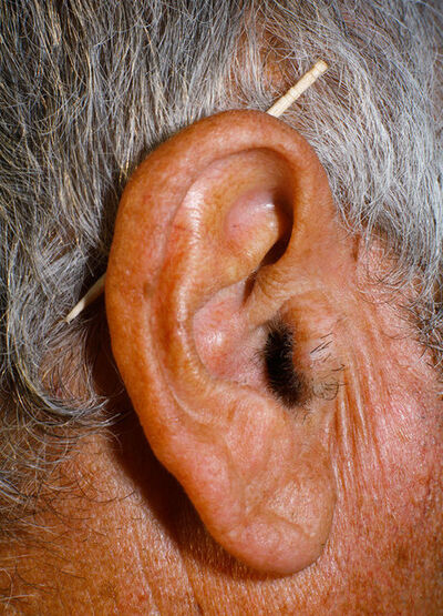 Ricardo Cases, 'Untitled (Ear)', 2011