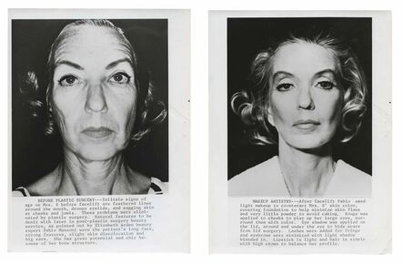Murray Moss, 'TQ 61/62: Plastic Surgery, Before and After', 1971/1971