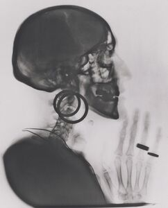 Méret Oppenheim, 'X-ray of My Skull', 1964; printed 1981
