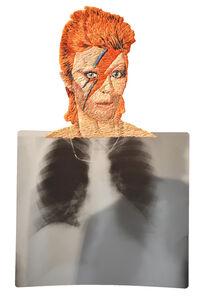 Matthew Cox, 'Heartthrob #2, David Bowie', 2012