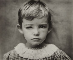 Sally Mann, 'Damaged Child', 1984