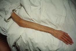 Nan Goldin, Gilles' arm, Paris