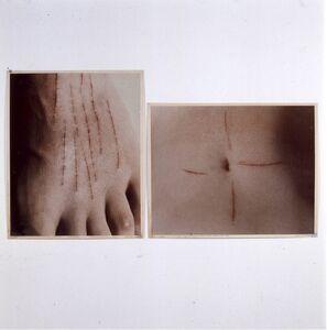 Gina Pane, 'Cicatrice de l'action (Le corps pressenti, Psyché)', 1974-1975