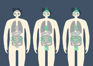 A visualisation of the three stages of burnout in the human body