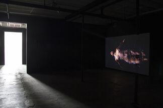 You Make Me Sick: I Love You, installation view