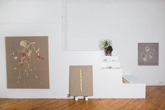 Fibrosis - New York, installation view