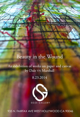 Beauty in the Wound, installation view