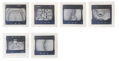 Jo Spence, 'Body Parts', 1978