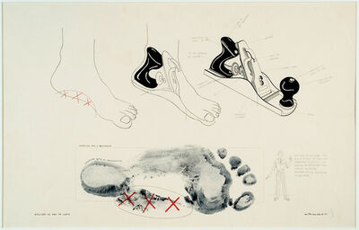 Milton Machado, 'The evolution of my flat feet', 1977