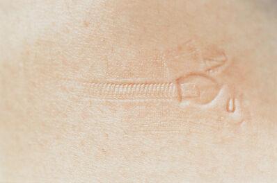 Elinor Carucci, 'Zipper Mark', 1999