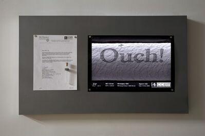 Rafael Lozano-Hemmer, 'Ouch!', 2009