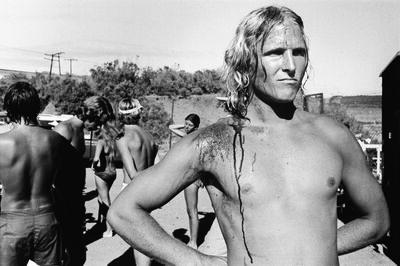 Anthony Friedkin, 'Bloody Surfer, Santa Barbara, California', 1979
